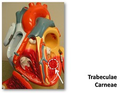 """Trabeculae carneae - The Anatomy of the Heart Visual Atlas, page 18 (of 40) (Rob Swatski) Tags: york podcast college blood model education lab heart body pennsylvania models review commons itunes science system medical pa organ study human ap anatomy laboratory learning atlas vein artery veins guide practice circulation visual communitycollege biology exam harrisburg nursing cardio cardiovascular arteries practical wiki reference vessels clinical cardiac physiology anterior lifescience hacc anatomyandphysiology circulatory itunesu leftventricle """"rob """"creative cardiacmuscle swatski trabecula trabeculae prenursing biogeekiwiki """"biol carneae"""