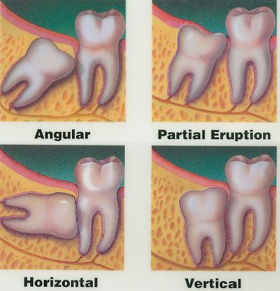 I had the angular profile for my lower two wisdom teeth, while my upper two were vertically set.