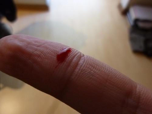 Cortada de dedo