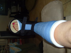 MDA0LmpwZw (chilltown1) Tags: toes cast ankle