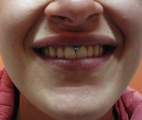 piercing en el cartilago. Piercing quot;smilequot; Pupa Tattoo