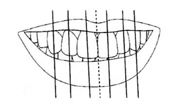Facial Aesthetic Design and Smile Design