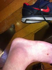 Grade 2 sprain
