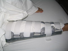 IMG_0620 (dhirani) Tags: after operation