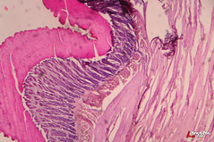 DSC_0011 (ruevin) Tags: stomach grinding gland glandular extramural ventriculus