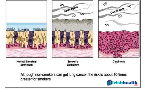 how to stop coughing after smoking