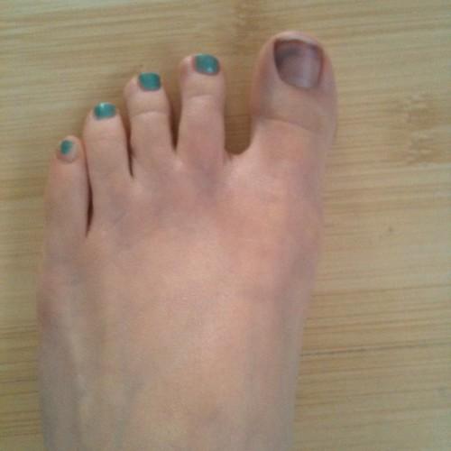 Bruised toenail