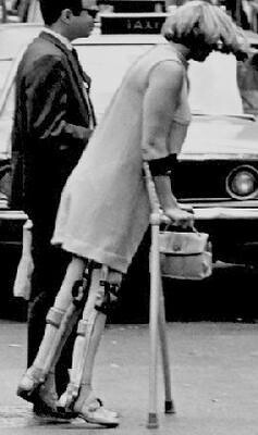 Women with Polio Leg Braces