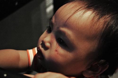 Baby Z 1st bruise