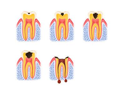 歯周病のプロセス