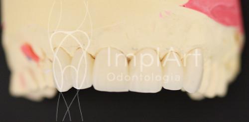 Faceta - Lentes de contato dentais