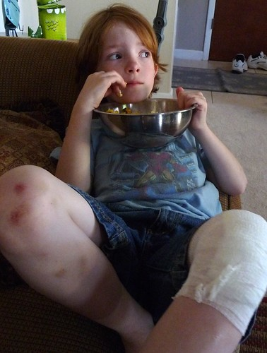 wounded boy chilling with TV and popcorn