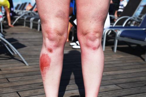 Bruiser Bruised