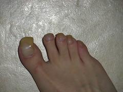 toenails 12-13-10 073 (kellt2010) Tags: long very clear nails toenails