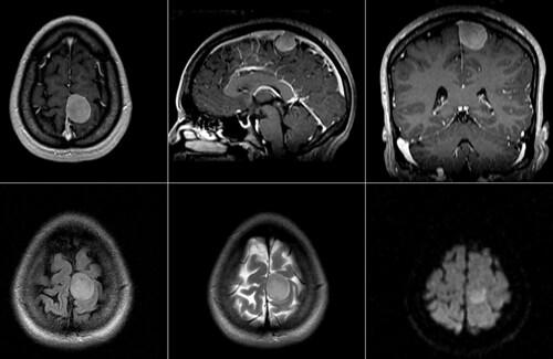 meningioma