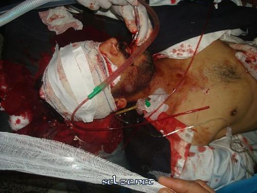 الى من اراد الحقيقه عن المظاهرات والقتل وكل ما يحدث في اليمن حالياً (الوجهه الحقيقي) 5511995478_24ef609ca2
