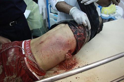 مجازر الجيش السعودى فى البحرين