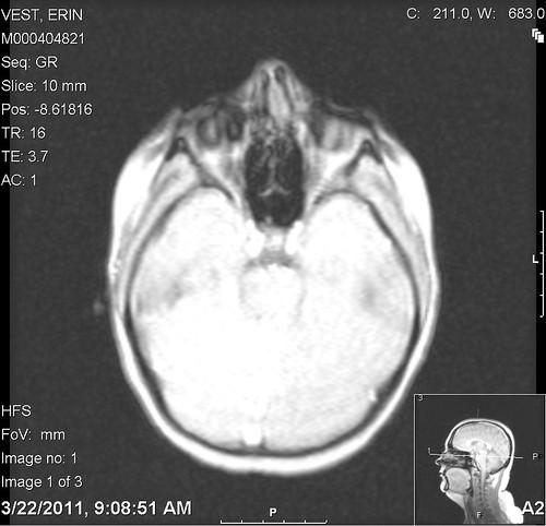 brains_02