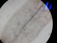 Stemonitis sp 6 (amagfx) Tags: mushroom yeast cells budding coprinus sporangia aspergillus rhizopus saccharomyces conidiophores
