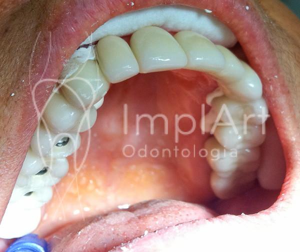 Reabilitação oral estética sobre dentes e sobre implantes em porcelana- instalação