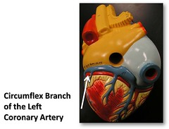 Circumflex branch of the left coronary artery, posterior view - The Anatomy of the Heart Visual Atlas, page 35 (of 40) (Rob Swatski) Tags: york podcast college blood model education lab heart body pennsylvania models review commons itunes science system medical pa organ study human ap anatomy laboratory posterior learning atlas vein artery veins guide practice circulation left visual communitycollege biology exam harrisburg nursing cardio cardiovascular arteries practical wiki reference vessels clinical cardiac physiology coronary lifescience hacc anatomyandphysiology circulatory itunesu circumflex swatski leftcoronaryartery prenursing biogeekiwiki