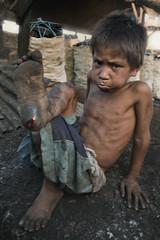 Ulingan, Tondo - Vincent revisit (part 2) (Mio Cade) Tags: boy mountain kid blood factory child philippines vincent injury dirt charcoal manila smokey wound injured sulk tondo ulingan