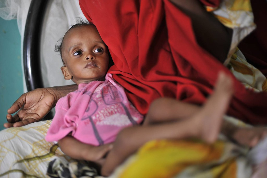 UNHCR News Story: UNHCR concerned about malnutrition levels among new Somali refugees