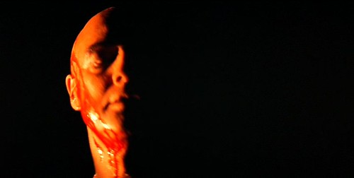 AN bleeding kurtz