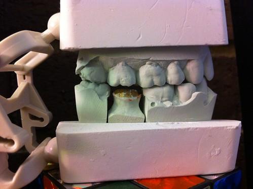 Cast of my teeth
