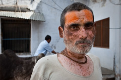 Skin, Vrindavan (Marji Lang) Tags: travel portrait people india man travelling canon looking skin indian documentary cell streetportrait medical disorder genetic patches causes disease peau homme vrindavan uttarpradesh vitiligo travelphotography maladie ef2470 melanin pigmentation travelshots chronicdisorder depigmentation mlanine natgeofacesoftheworld 5dmii melanocytes marjilang