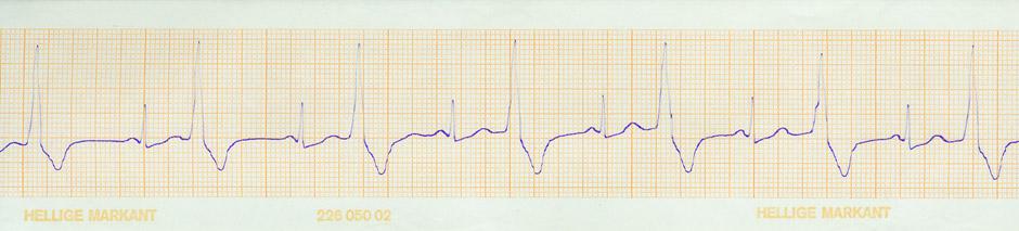 Pliego impreso de un electrocardiograma