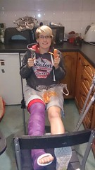 BWpSHVfIAAEUm8Y (cb_777a) Tags: broken leg ankle foot cast crutches toes