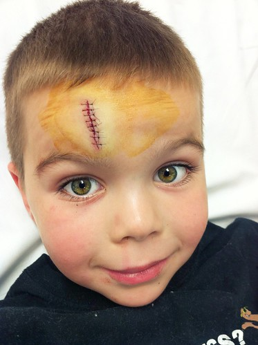 Silly kid, is not bothered by injuries