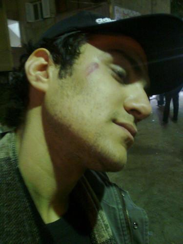 اصابات بين المتظاهرين بالمنصوره فى يوم الغضب 25 يناير