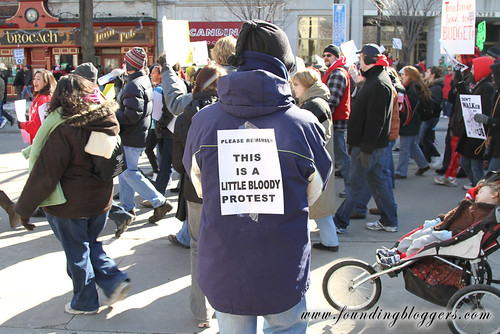 PICTURE – This Is A Little Bloody Protest