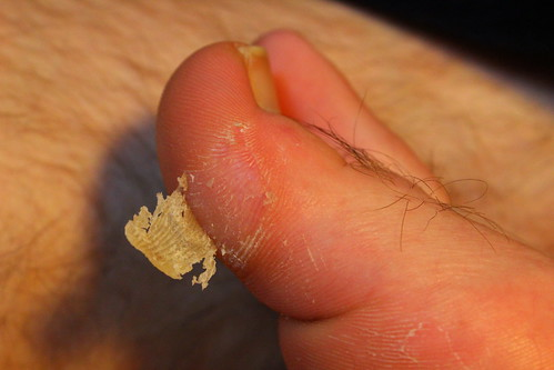 Foot Planters Wart Large Painful Callus On Big Toe