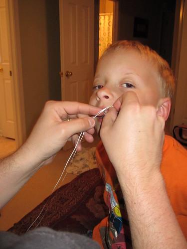 Pulling teeth?