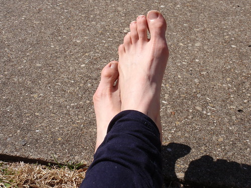 Post-run Feet