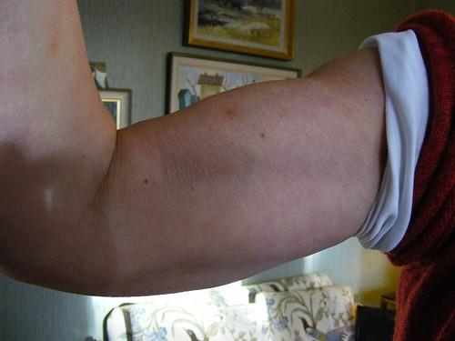 Muskler liten