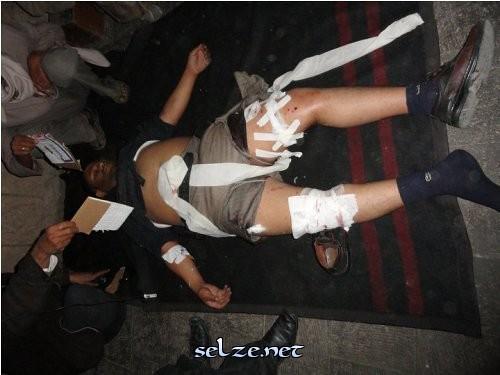 الى من اراد الحقيقه عن المظاهرات والقتل وكل ما يحدث في اليمن حالياً (الوجهه الحقيقي) 5511988706_e299ae1ae1