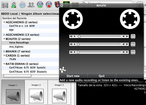 KDS DICOM voice clip plug-in