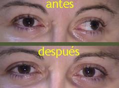 estrabismo cirugía adultos  El estrabismo en la edad adulta se puede operar estrabismo enfermedades especialidades enfermedades    Diagnóstico Terapéutica ocular