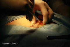 Hernia Surgery #9 (Bassisette) Tags: availablelight surgical hernia operatingroom herniasurgery canon7d herniaprocedure