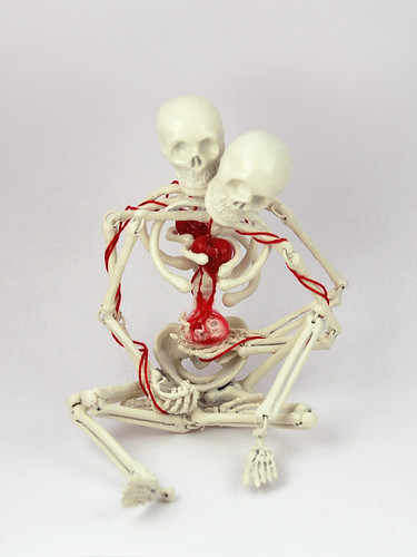 Skeleton pregnancy TOAE
