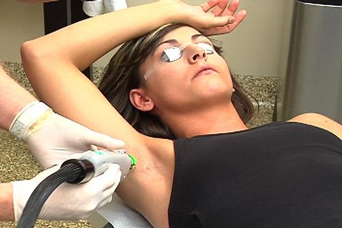 Laser_Hair_Removal-Underarm