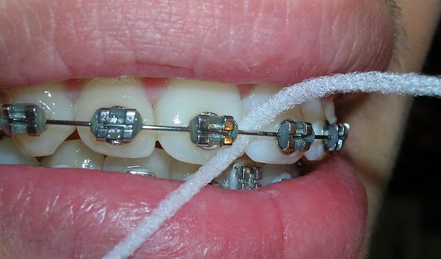 Cinta y braquets de ortodoncia