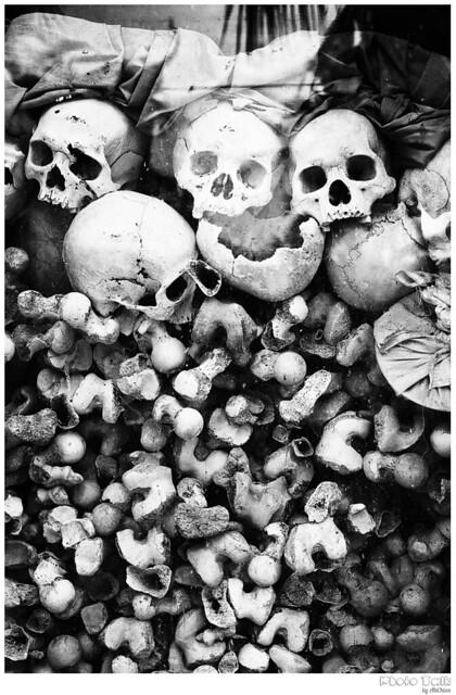 · Bones ·