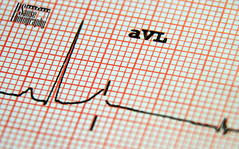 Life (Sause Photography) Tags: red white macro hospital t grid photography heart wave peak health beat p care ekg clinic healthcare axis cardio rhythm qrs rate ecg electrocardiogram interval sause ventricular