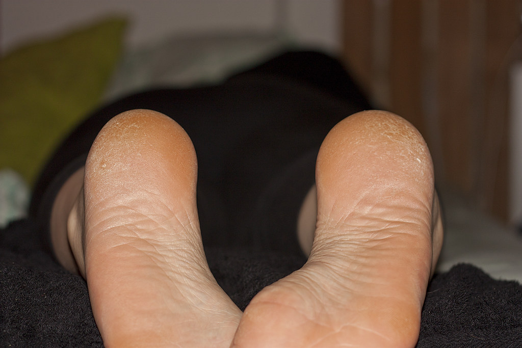 (marcelsoleluv) Tags: black sexy dusty feet stockings grass fetish big toes  toe bbw