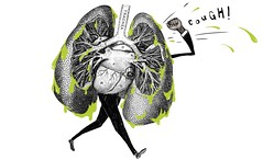 Pneumonia Disease : The Symptoms, Risk Factor, And Possible Treatments (HealthyEve) Tags: aids alcoholabuse alveoli antibiotics bacteria bacterium cancer chills chlamydiapneumoniae diabetes digestivedisorders drug fever flu haemophilusinfluenzae health healthaz healthy healthyeve herpes hiv immunesystem infection inflammatory influenza lungs microbe mycoplasmapneumoniae pneumonia pneumoniadisease pulmonaryalveoli respiratory rhinoviruses smoking sorethroats staphylococcusaureus streptococcuspneumoniae vaccination virus